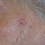 basal cell skin cancer