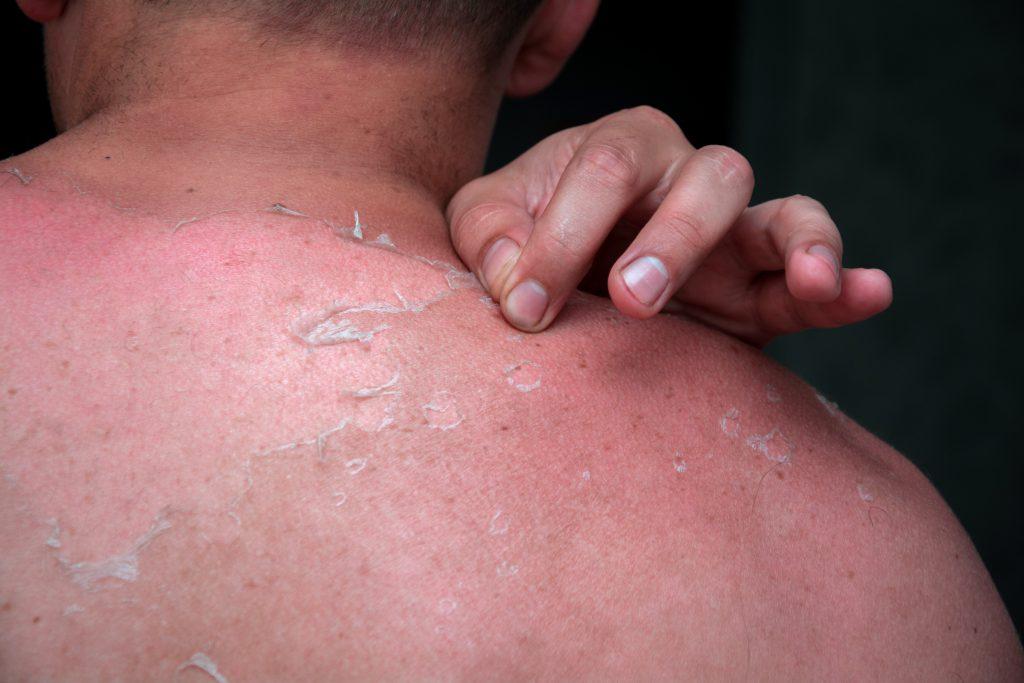 sunburn-peeling-skin-skin-checks