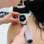 skin-check-tauranga-dermo scope
