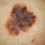 melanoma-skin-cancer-clinic tauranga