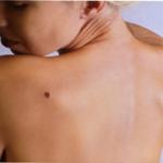 melanoma-skin-check